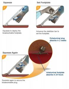 custom alloy for medical device